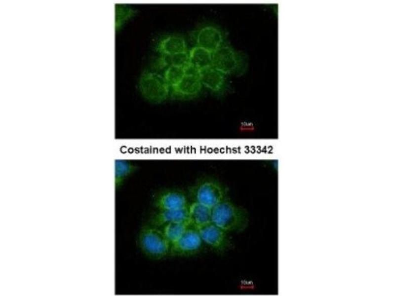 Immunofluorescence (IF) image for anti-Crk antibody (V-Crk Sarcoma Virus CT10 Oncogene Homolog (Avian)) (ABIN442021)