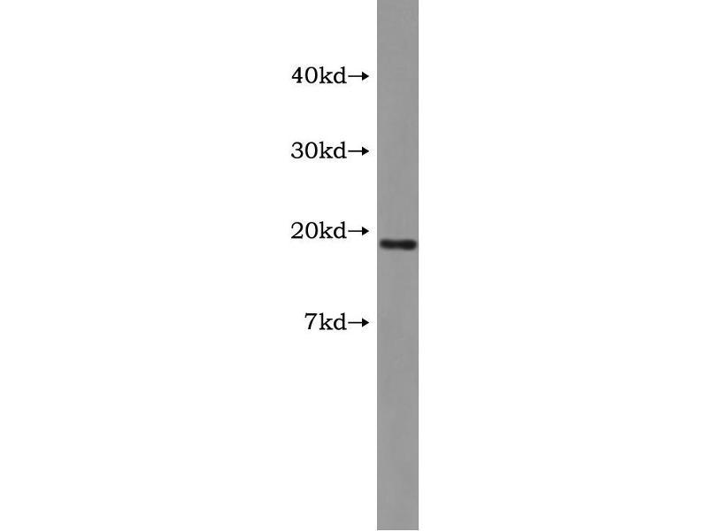 Vasoactive Intestinal Peptide (Vip) ELISA Kit (4)