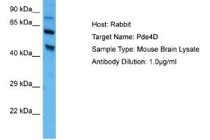 Image no. 1 for anti-phosphodiesterase 4D, cAMP-Specific (PDE4D) (C-Term) antibody (ABIN2786831)