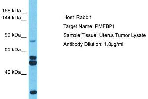 Image no. 1 for anti-Polyamine Modulated Factor 1 Binding Protein 1 (PMFBP1) (Middle Region) antibody (ABIN2783093)
