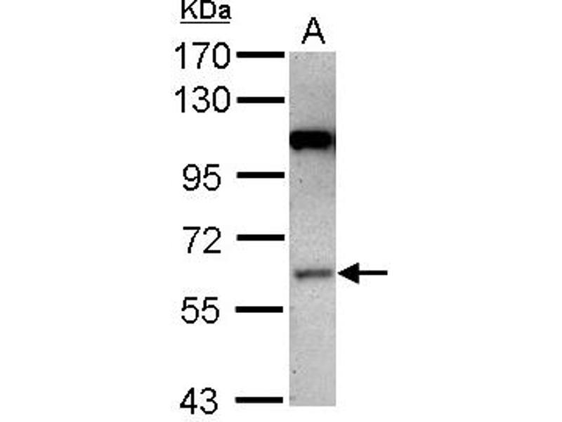 image for anti-MAP3K3 antibody (Mitogen-Activated Protein Kinase Kinase Kinase 3) (Internal Region) (ABIN1496076)