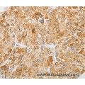 Immunohistochemistry of Human liver cancer using NGF Polyclonal Antibody at dilution of 1:40
