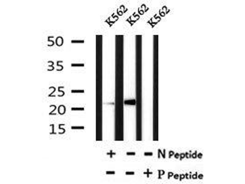 Image no. 4 for anti-BCL2-Like 11 (Apoptosis Facilitator) (BCL2L11) (pSer118) antibody (ABIN6269659)