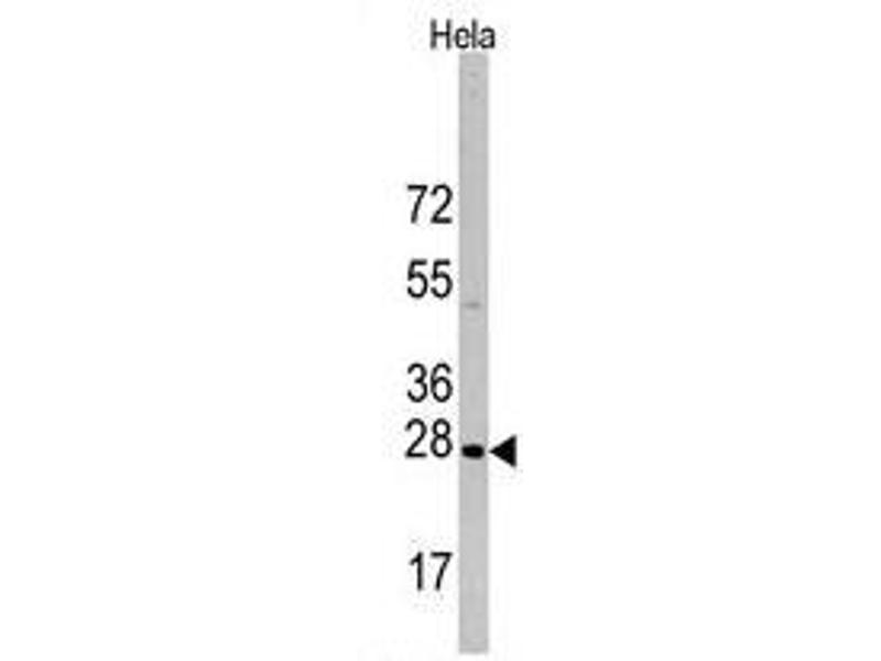 Western Blotting (WB) image for anti-HSPB1 antibody (Heat Shock 27kDa Protein 1) (Ser83) (ABIN359387)