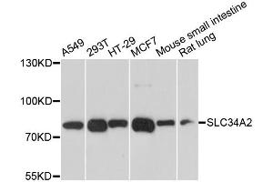 Image no. 1 for anti-Solute Carrier Family 34 (Sodium Phosphate), Member 2 (SLC34A2) antibody (ABIN6571983)