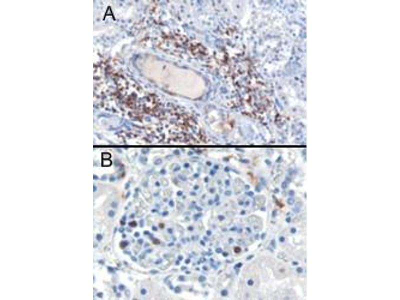 Immunohistochemistry (IHC) image for anti-SH3BP1 antibody (SH3-Domain Binding Protein 1) (C-Term) (ABIN185183)