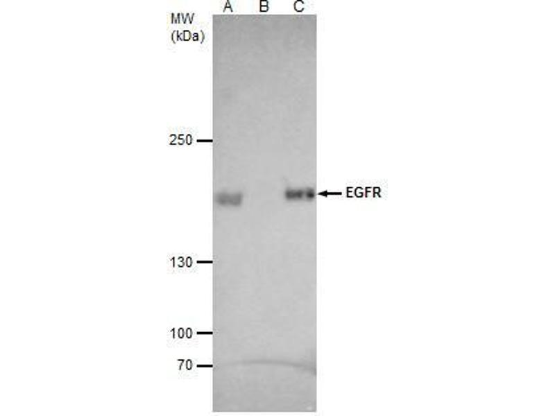 Immunoprecipitation (IP) image for anti-EGFR antibody (Epidermal Growth Factor Receptor) (C-Term) (ABIN2854754)