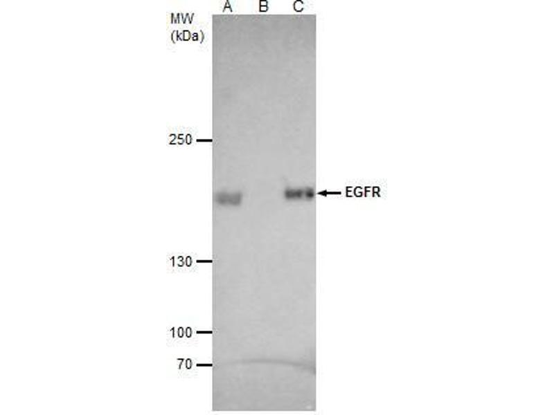 Immunoprecipitation (IP) image for anti-Epidermal Growth Factor Receptor (EGFR) (C-Term) antibody (ABIN2854754)