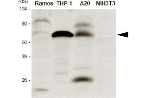 Image no. 1 for anti-Interferon Regulatory Factor 5 (IRF5) (AA 176-240) antibody (ABIN121152)