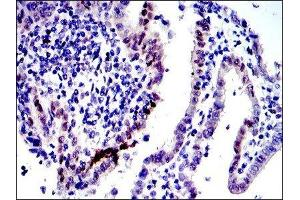 Immunohistochemistry (IHC) image for anti-C-JUN antibody (Jun Proto-Oncogene) (ABIN4285648)