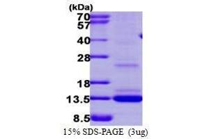 SDS-PAGE (SDS) image for Matrix Gla Protein (MGP) (AA 20-96) peptide (His tag) (ABIN935117)
