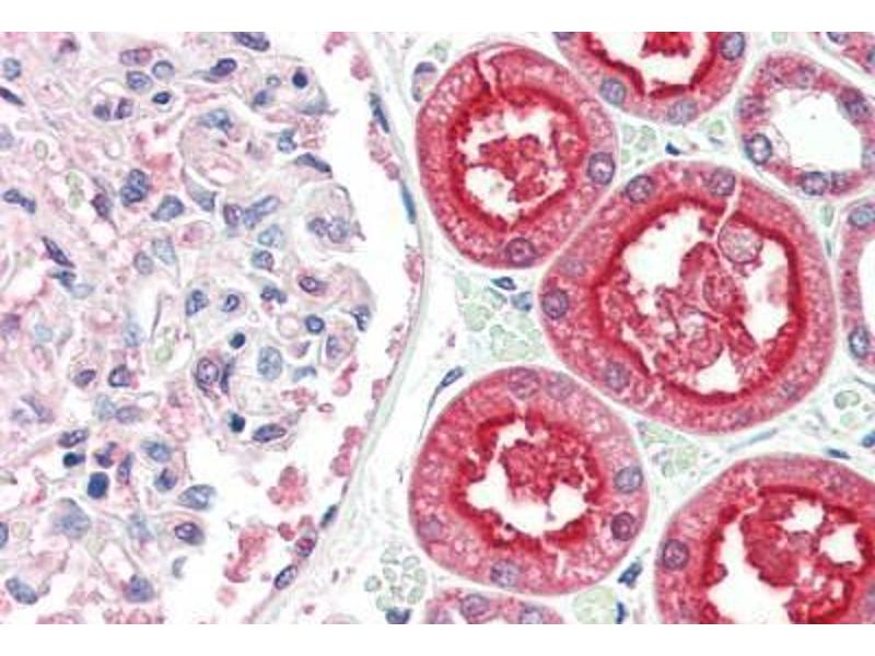 Image no. 2 for anti-Angiotensin I Converting Enzyme 2 (ACE2) (Internal Region) antibody (ABIN461888)