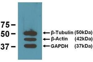 image for anti-Tubulin, beta (TUBB) antibody (ABIN1001721)
