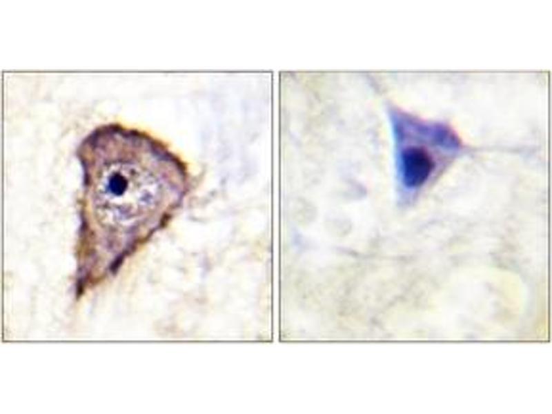 Immunohistochemistry (IHC) image for anti-Fms-Related tyrosine Kinase 1 (Vascular Endothelial Growth Factor/vascular Permeability Factor Receptor) (FLT1) (AA 1289-1338), (pTyr1333) antibody (ABIN1531410)