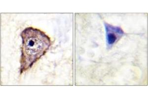 Immunohistochemistry (IHC) image for anti-Fms-Related tyrosine Kinase 1 (Vascular Endothelial Growth Factor/vascular Permeability Factor Receptor) (FLT1) (pTyr1333) antibody (ABIN1531410)