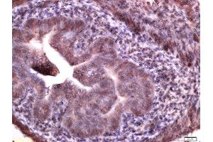 Immunohistochemistry (Paraffin-embedded Sections) (IHC (p)) image for anti-MFNG (MFNG) antibody (ABIN1714395)