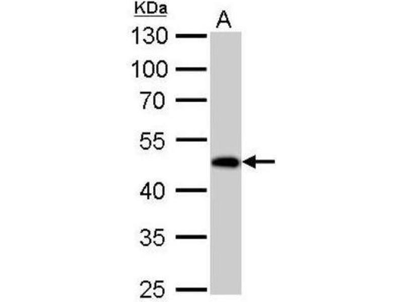 Western Blotting (WB) image for anti-Guanine Deaminase (GDA) (Center) antibody (ABIN4316467)