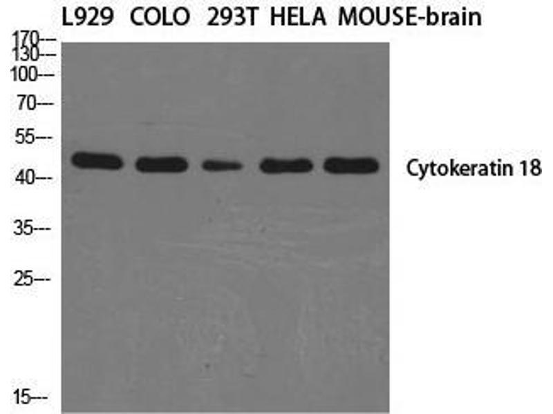 Western Blotting (WB) image for anti-Keratin 18 (KRT18) (C-Term) antibody (ABIN3184231)