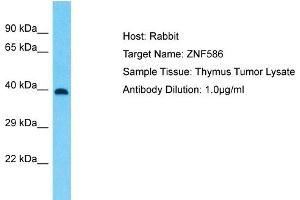 Image no. 1 for anti-Zinc Finger Protein 586 (ZNF586) (Middle Region) antibody (ABIN2780517)