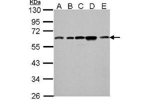 Western Blotting (WB) image for anti-Clusterin (CLU) (Center) antibody (ABIN2854982)