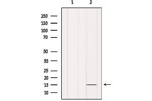 Image no. 3 for anti-Insulin-Like 5 (INSL5) antibody (ABIN6262602)
