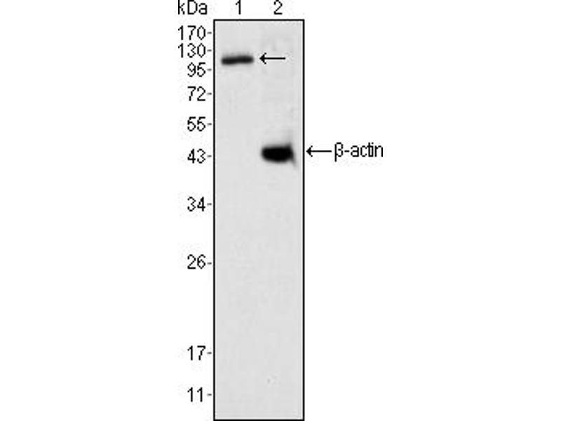 Image no. 2 for anti-Death-Domain Associated Protein (DAXX) antibody (ABIN1576024)