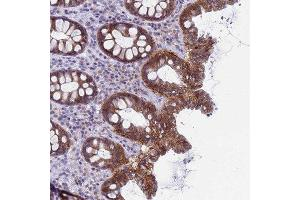 Immunohistochemistry (Paraffin-embedded Sections) (IHC (p)) image for anti-Cyclin-Dependent Kinase 2 Associated Protein 2 (CDK2AP2) antibody (ABIN4297050)
