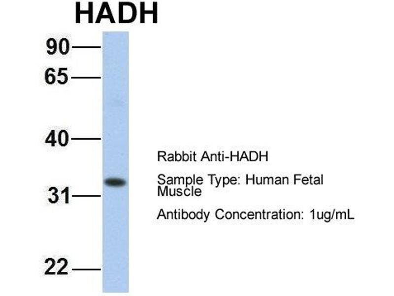 Western Blotting (WB) image for anti-Hydroxyacyl-CoA Dehydrogenase (HADH) (C-Term) antibody (ABIN2785872)