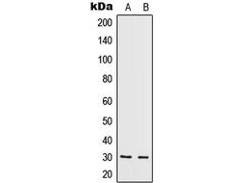 Western Blotting (WB) image for anti-IL5 antibody (Interleukin 5) (Center) (ABIN2706392)