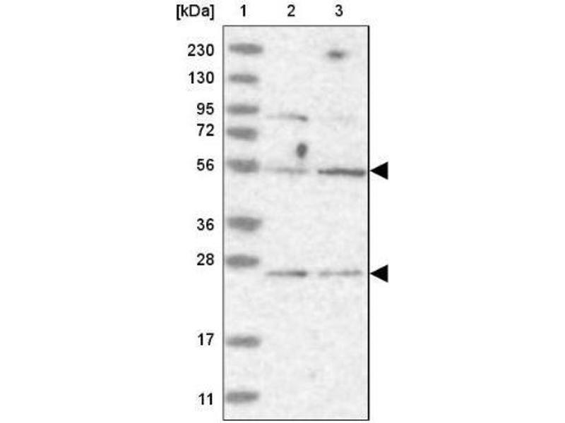 Western Blotting (WB) image for anti-Centrosomal Protein 57kDa (CEP57) antibody (ABIN4297744)