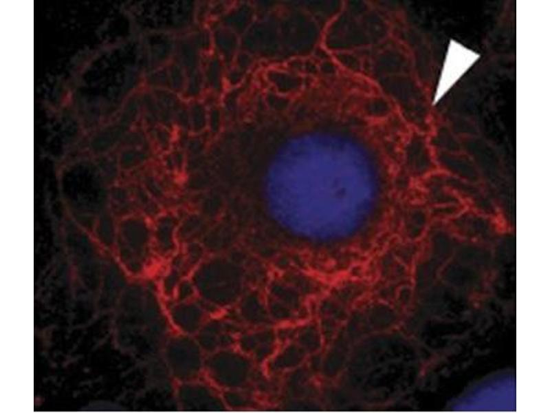 image for anti-Keratin 3 (KRT3) antibody (ABIN108617)