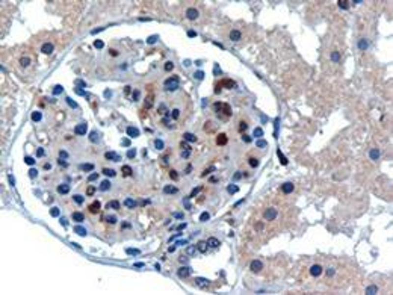 Image no. 2 for anti-Ubiquitin-Conjugating Enzyme E2I (UBE2I) (N-Term) antibody (ABIN782921)
