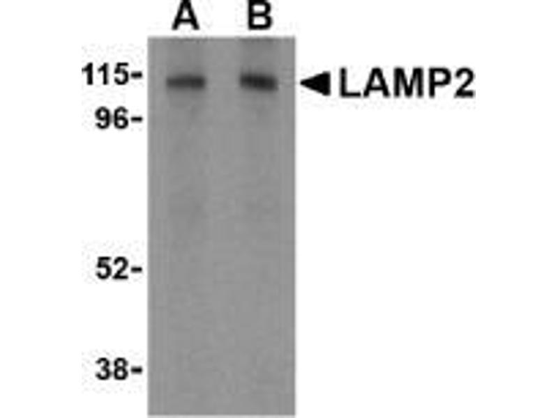 Western Blotting (WB) image for anti-LAMP2 antibody (Lysosomal-Associated Membrane Protein 2) (C-Term) (ABIN497979)