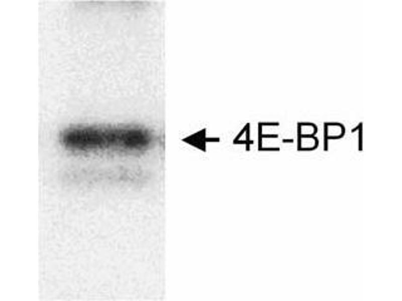 Western Blotting (WB) image for anti-MTOR antibody (Mechanistic Target of Rapamycin (serine/threonine Kinase)) (ABIN151707)