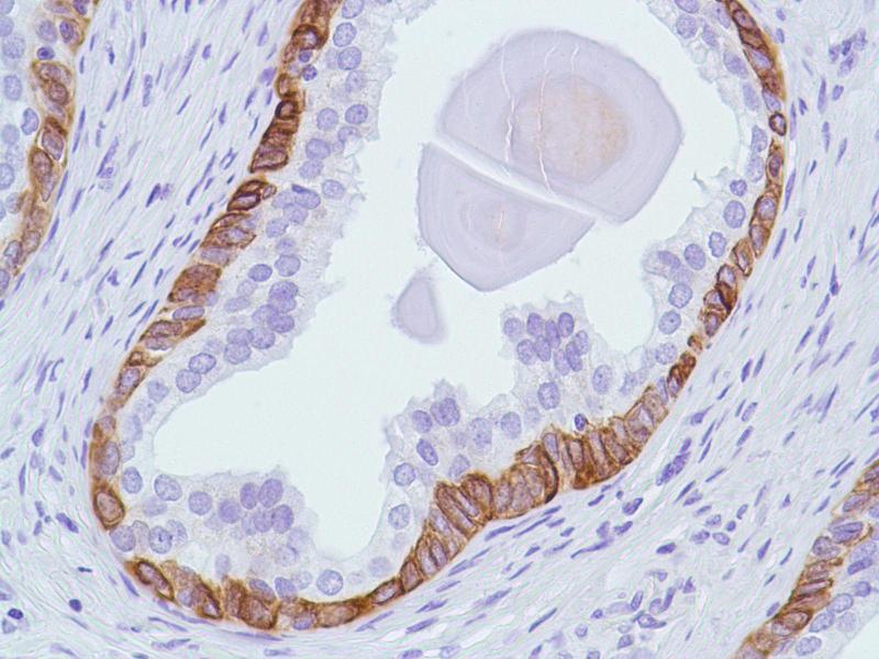 Immunohistochemistry (IHC) image for anti-BAX antibody (BCL2-Associated X Protein) (Internal Region) (ABIN1687081)