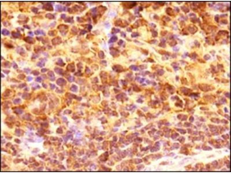 Immunohistochemistry (Paraffin-embedded Sections) (IHC (p)) image for anti-CD4 Molecule (CD4) (AA 400-458), (C-Term) antibody (ABIN439030)