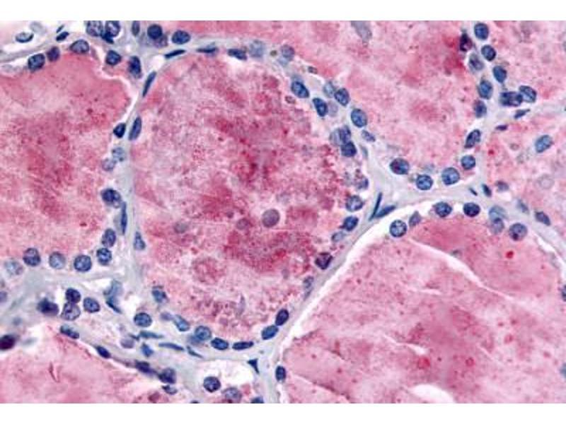 Immunohistochemistry (Paraffin-embedded Sections) (IHC (p)) image for anti-phosphodiesterase 8B (PDE8B) (Internal Region) antibody (ABIN213536)