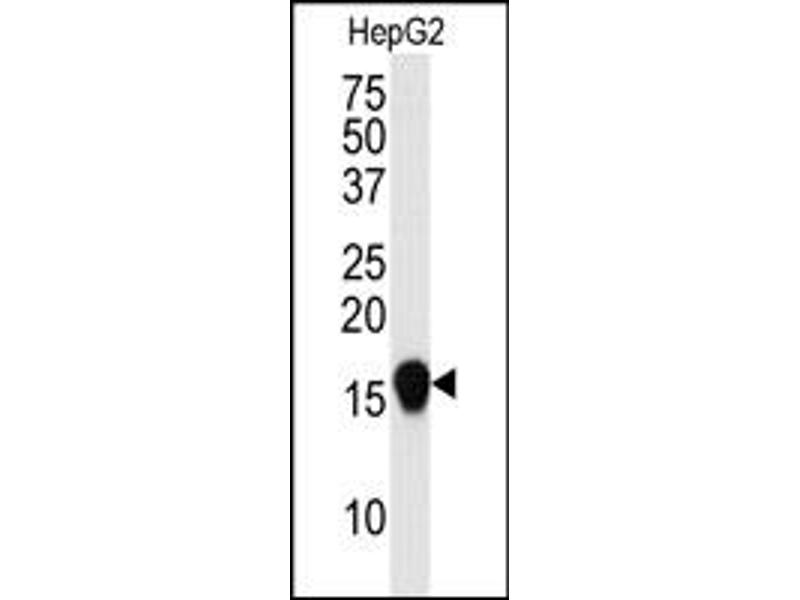 Image no. 1 for anti-SMT3 Suppressor of Mif Two 3 Homolog 4 (S. Cerevisiae) (SUMO4) (Met55Val-Mutant) antibody (ABIN356787)