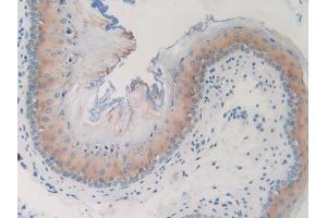 Immunohistochemistry (Paraffin-embedded Sections) (IHC (p)) image for anti-Guanine Nucleotide Binding Protein (G Protein), gamma 8 (GNG8) (AA 1-70) antibody (ABIN2929961)