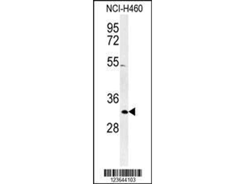 Western Blotting (WB) image for anti-Xeroderma Pigmentosum, Complementation Group A (XPA) (AA 221-250), (C-Term) antibody (ABIN652730)