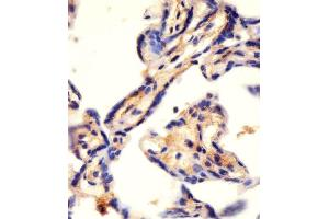 Image no. 5 for anti-Carbamoyl-Phosphate Synthetase 2, Aspartate Transcarbamylase, and Dihydroorotase (CAD) (AA 780-809), (Center) antibody (ABIN655062)