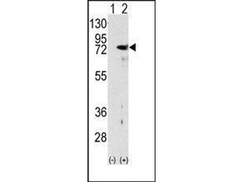 Western Blotting (WB) image for anti-PKC delta antibody (Protein Kinase C, delta) (N-Term) (ABIN359063)