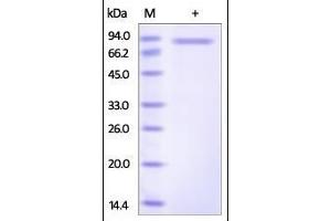 Image no. 1 for SLIT and NTRK-Like Family, Member 6 (SLITRK6) (AA 27-608) protein (His tag) (ABIN2181779)