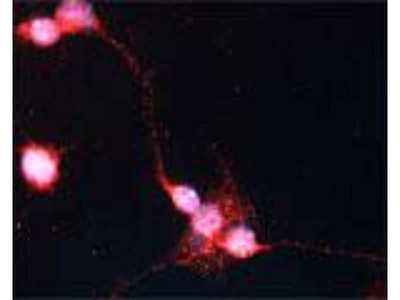 Image no. 1 for anti-Sortilin 1 (SORT1) (C-Term) antibody (ABIN350866)
