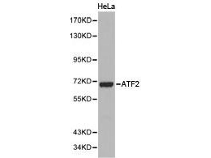 Western Blotting (WB) image for anti-Activating Transcription Factor 2 (ATF2) antibody (ABIN1871128)
