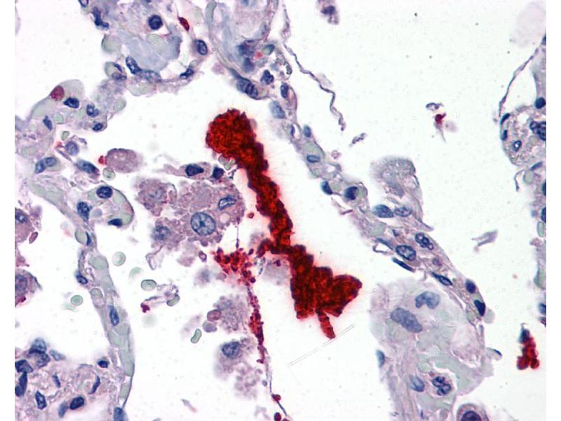 Immunohistochemistry (IHC) image for anti-Kallikrein 6 antibody (KLK6) (N-Term) (ABIN2778179)