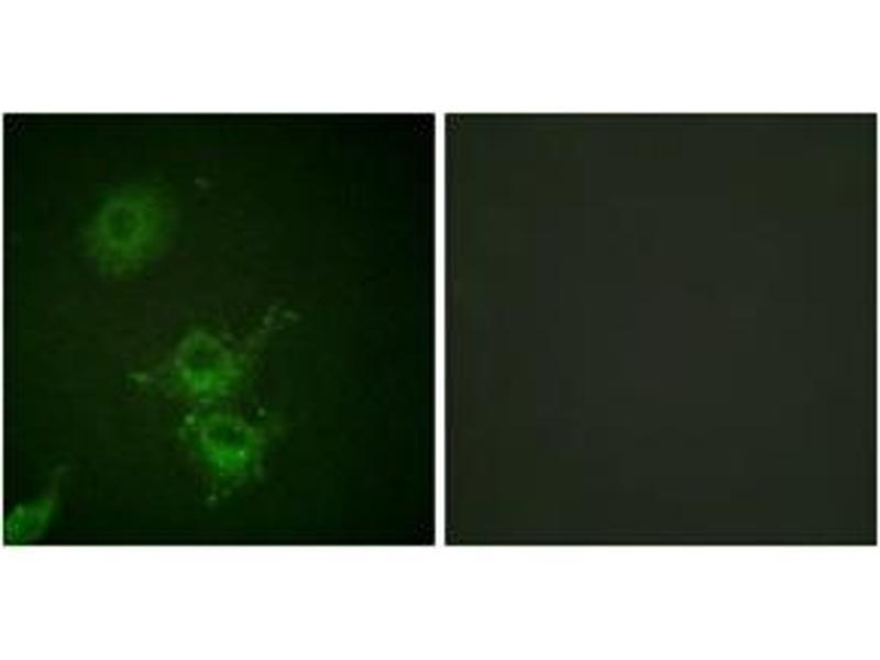 Immunofluorescence (IF) image for anti-Epidermal Growth Factor Receptor (EGFR) (AA 661-710), (pThr693) antibody (ABIN1531178)