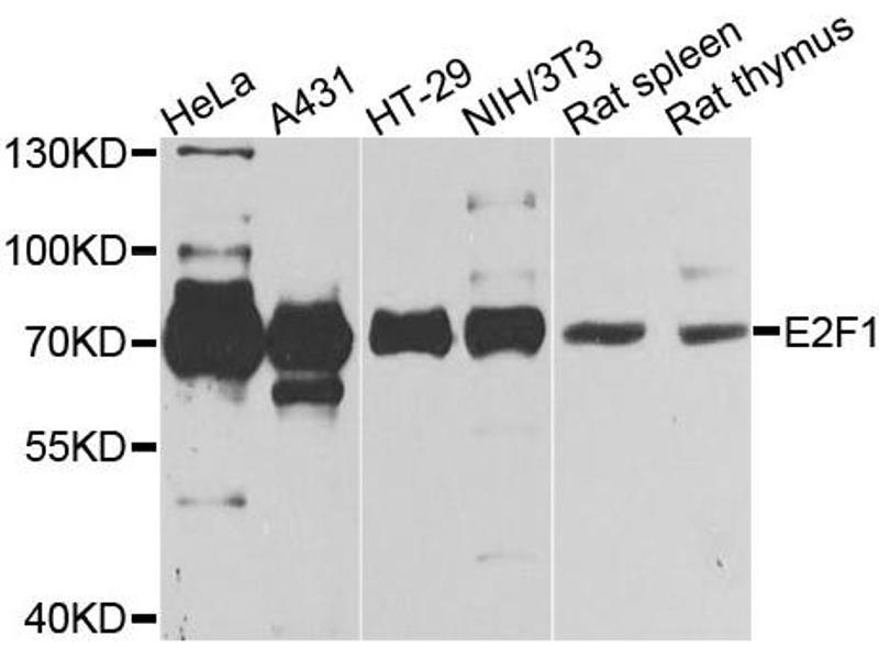 Western Blotting (WB) image for anti-E2F Transcription Factor 1 (E2F1) antibody (ABIN4903534)