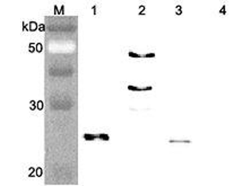 Western Blotting (WB) image for anti-Fibroblast Growth Factor 21 (FGF21) antibody (ABIN1169424)