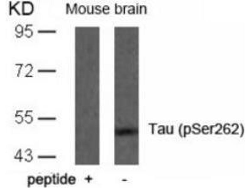 Western Blotting (WB) image for anti-MAPT antibody (Microtubule-Associated Protein tau) (pSer262) (ABIN257610)